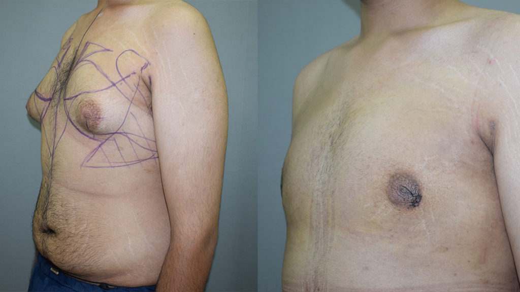 Male Breast Reduction Surgical Procedure
